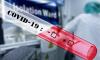 Названы регионы с новыми случаями инфицирования коронавирусом на 20 апреля