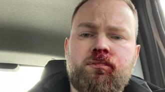 Петербургского блогера Илью Бронского избили после его рассказа о жизни с ВИЧ