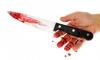 В кафе на улице Шаврова неизвестные ночью пырнули ножом 17-летнего подростка