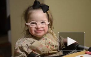 Минздрав: в России число людей с синдромом Дауна выросло до 19 тысяч