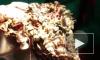 В Индии хирурги извлекли из желудка девушки 1,6 кг золотых украшений